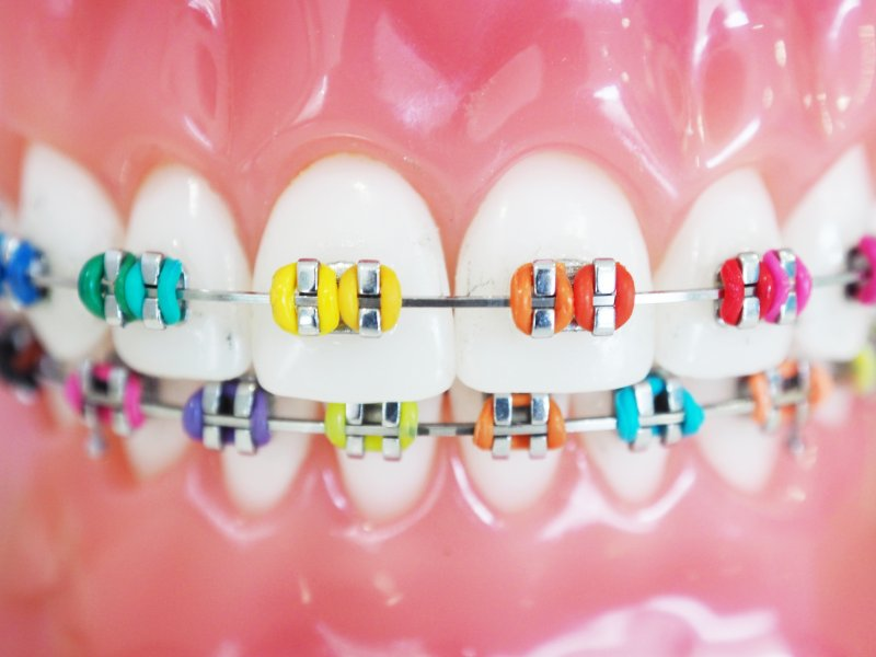 Closeup of rainbow-colored braces