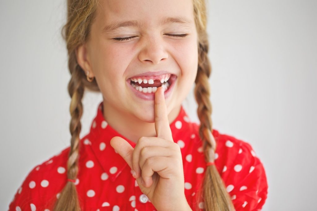 Child smiling while pointing to missing baby tooth